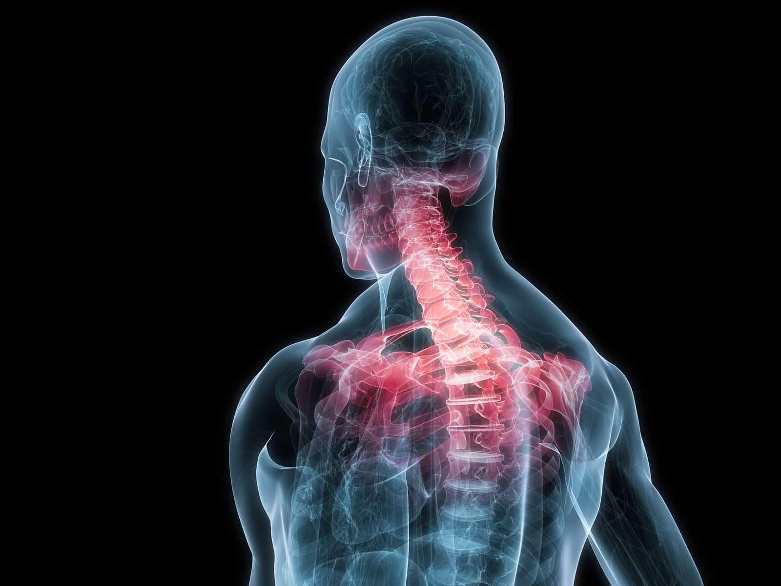 Ayurvedic treatment for Neck pain