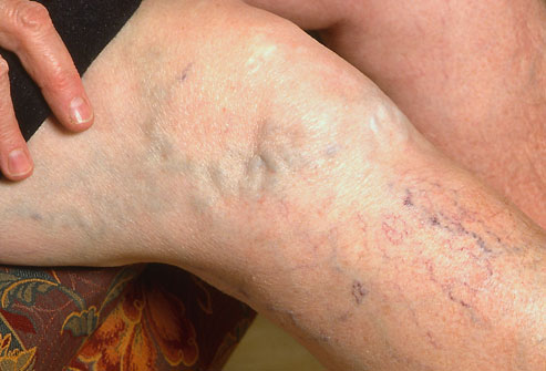 Ayurvedic Treatment for varicose Veins